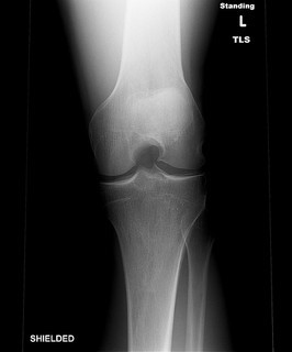 When your kick lands on a bony surface, there\'s a high possibility that you might suffer from bone bruise.